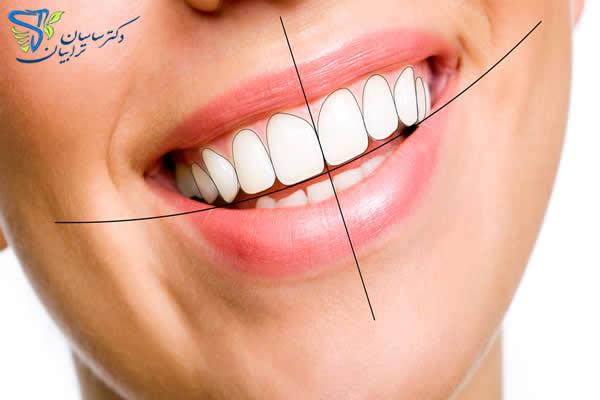 آنالیز اصلاح طرح لبخند